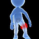 Knee pain arthritis